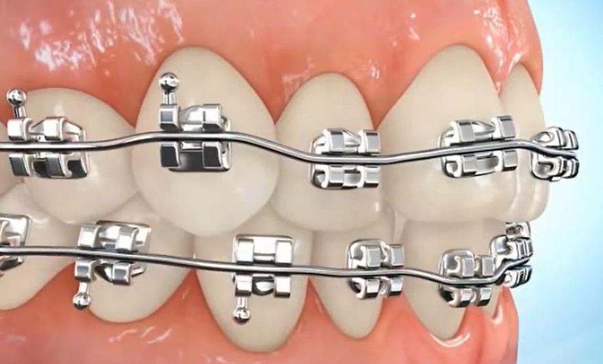 Bolehkah Merapikan Gigi?